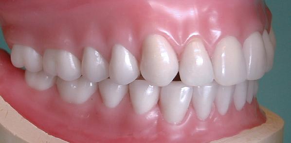 Taking Pride in Your Dentures