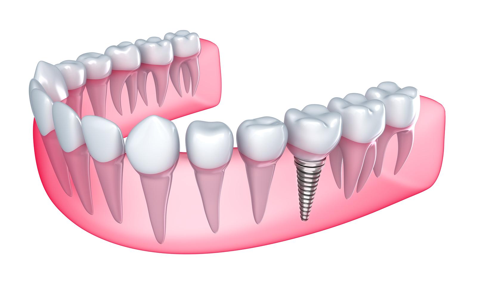 Understanding Todays Dental Implants