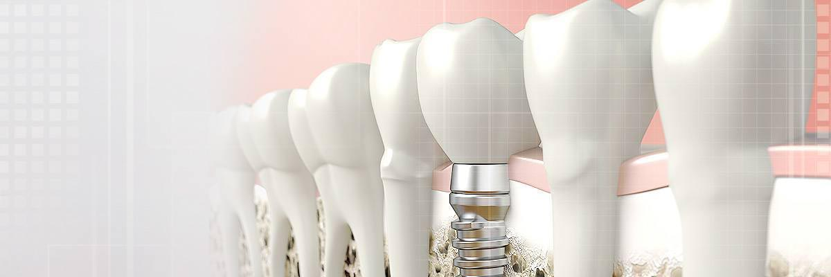 Dental Implants in Santa Clarita, CA