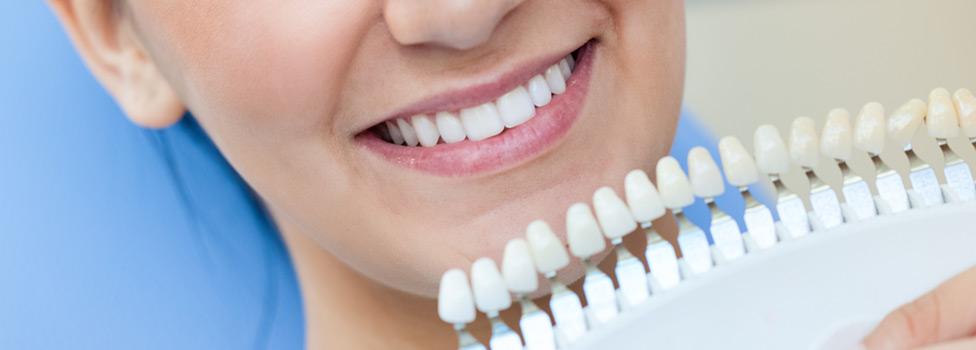 Why Use Teeth Whitening?