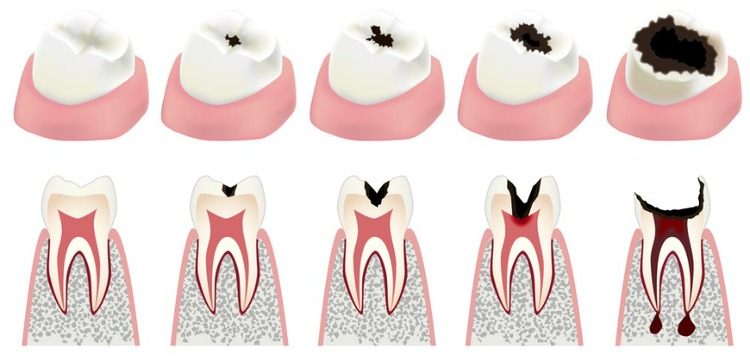 Cavities and Tooth Decay Treatment in Santa Clarita